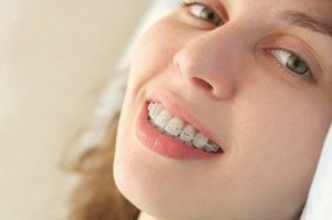 ecco un esempio di apparecchio denti