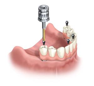 immagine dentista specializzato