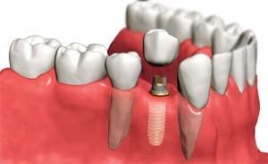 implantologia bari
